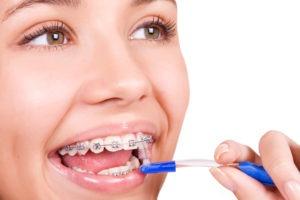girl using proxabrush on braces
