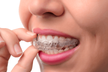 girl with Invisalign tray smiling